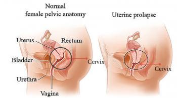 Apical or Uterine Prolapse Illustration