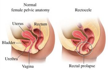 Posterior Vaginal Wall or Rectocele Prolapse