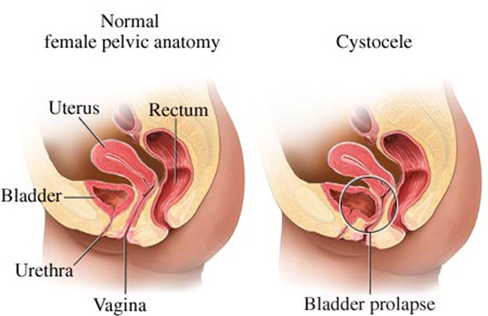 Anterior vaginal wall or cystocele prolapse illustration.