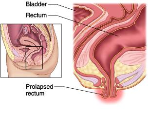 Bulge at opening of anus